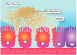 Hyphal Candida albicans Causes Mucosal Barrier Dysfunction and Leaky Gu